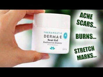 Видео обзор на Дерма Е гель от шрамов и растяжек 56 г